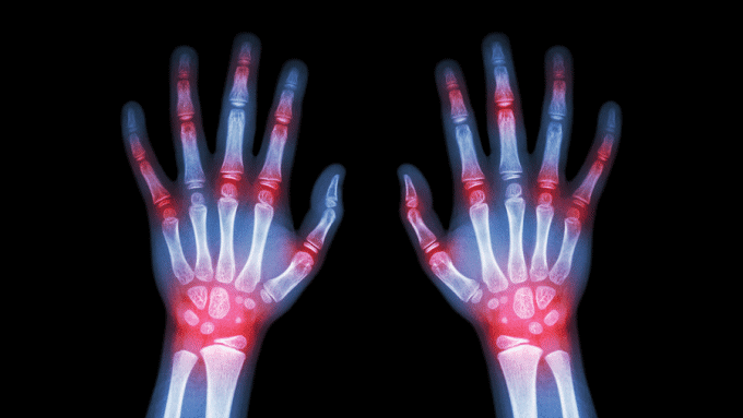 Arthritis and Medicinal Cannabis