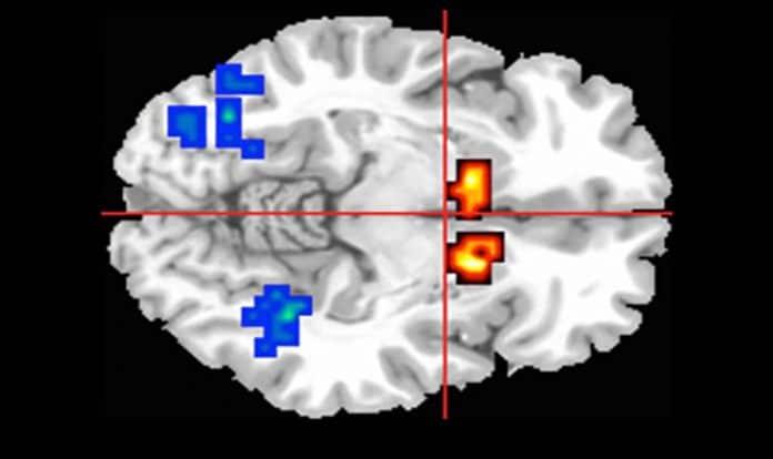 Cannabidiol as a psychosis treatment