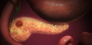 Pancreatic cancer and cannabidiol