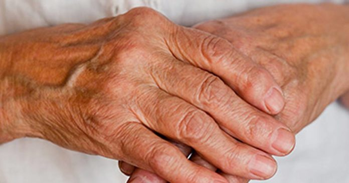 Arthritis Foundation cannabidiol guide